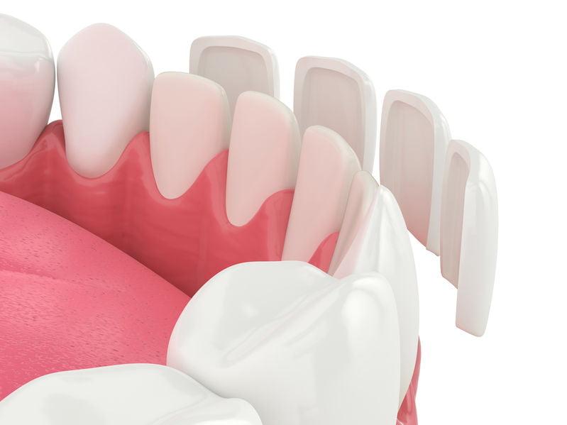 Are porcelain dental veneers good